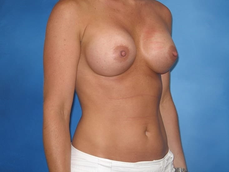 Breast Enhancement Munster Patient 1.1