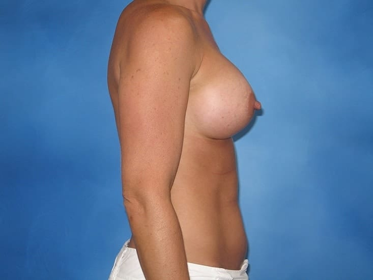 Breast Enhancement Munster Patient 2.1