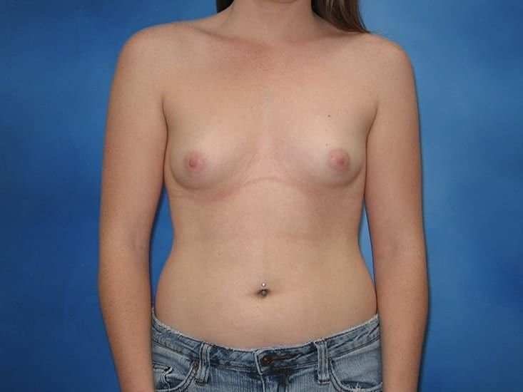 Breast Enhancement Munster Patient 3