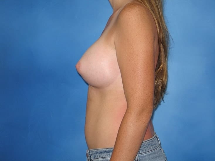 Breast Enhancement Munster Patient 5.1