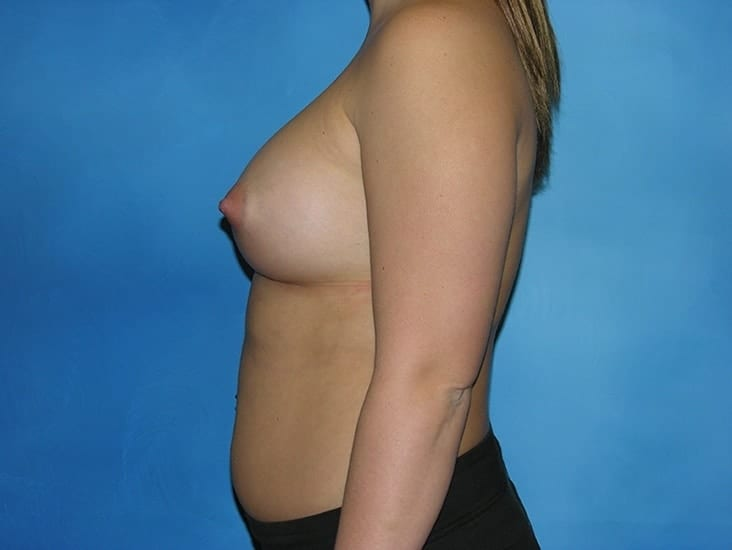Breast Enlargement Hobart Patient 1.1