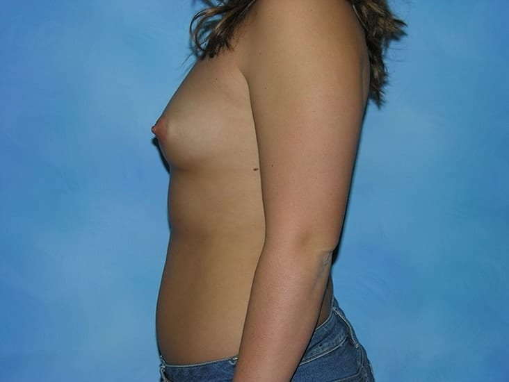 Breast Enlargement Hobart Patient 1