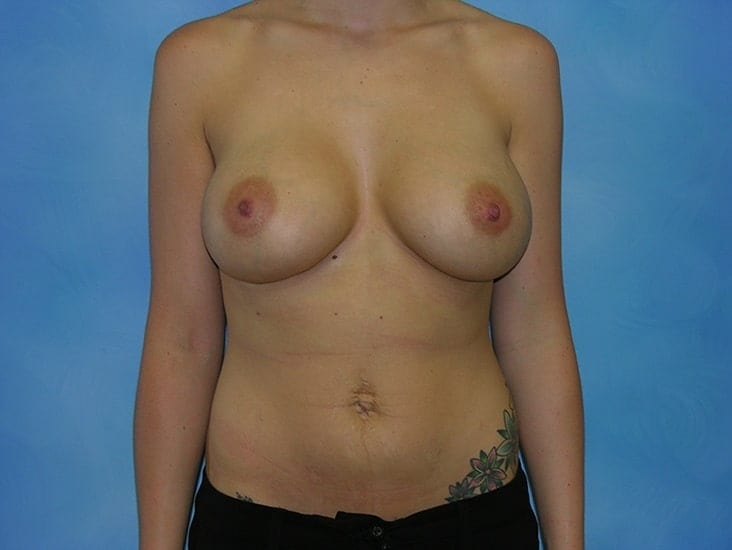 Breast Enlargement Hobart Patient 2.1