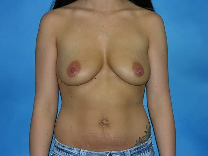 Breast Enlargement Hobart Patient 2
