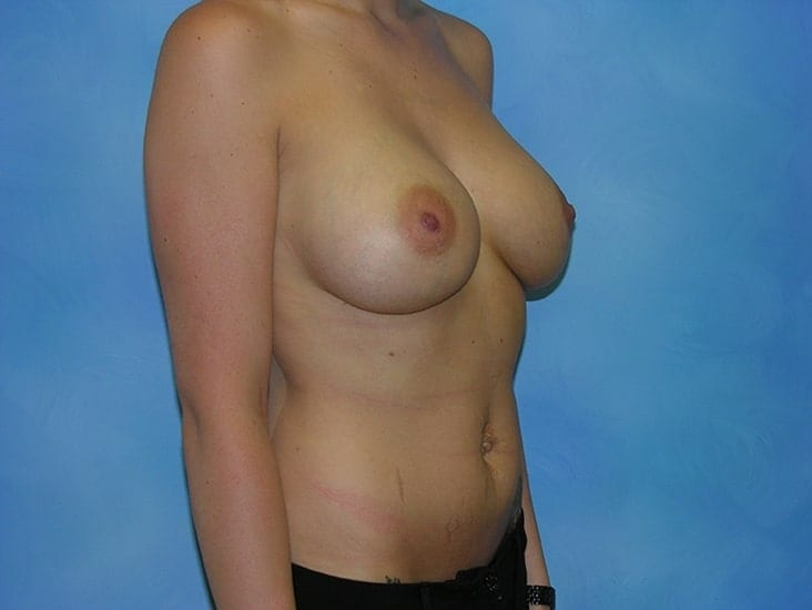 Breast Enlargement Hobart Patient 3.1