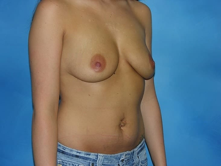 Breast Enlargement Hobart Patient 3