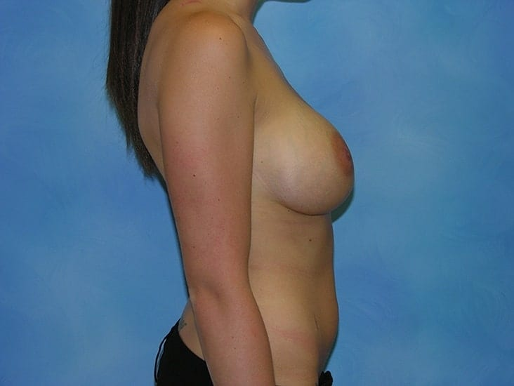 Breast Enlargement Hobart Patient 4.1