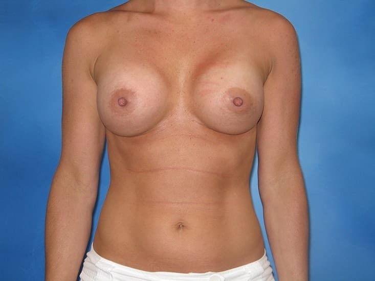 Breast Enlargement Hobart Patient 5.1