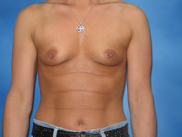 Breast Enlargement Hobart Patient 5