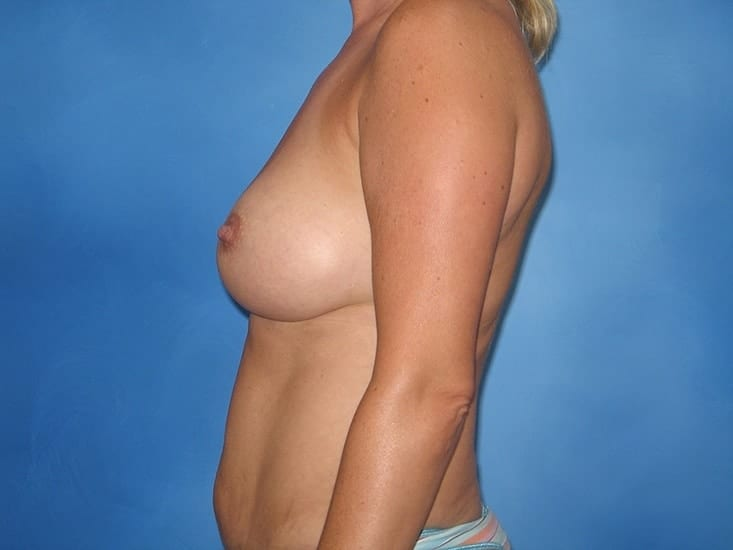 Breast Enlargement Munster Patient 1.1