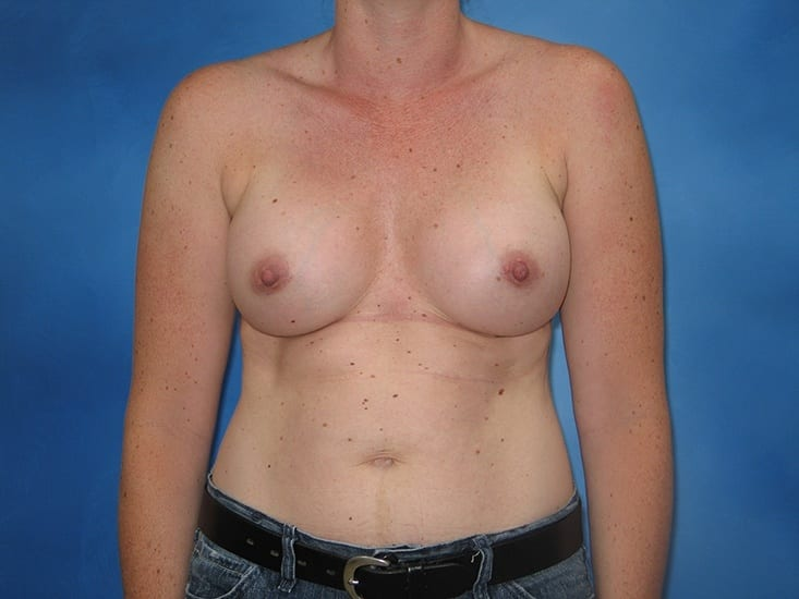 Breast Enlargement Munster Patient 2.1