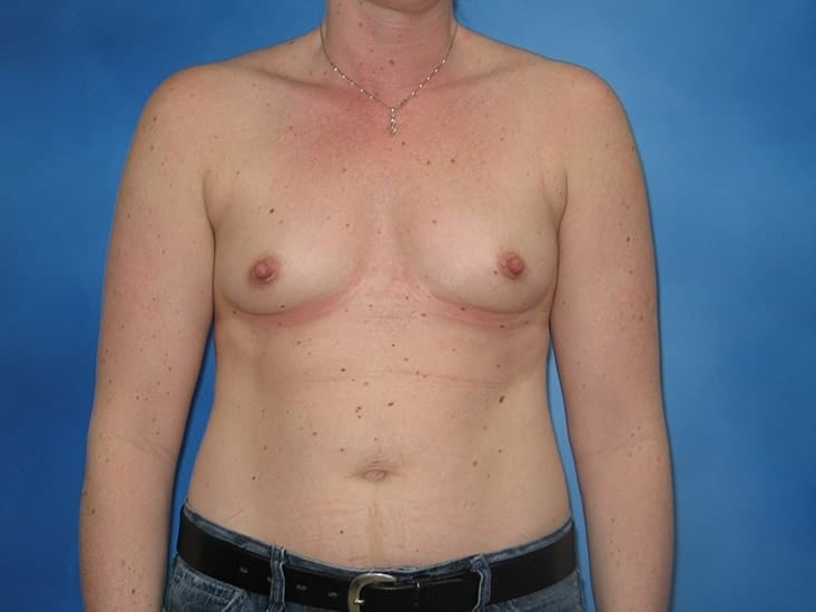 Breast Enlargement Munster Patient 2