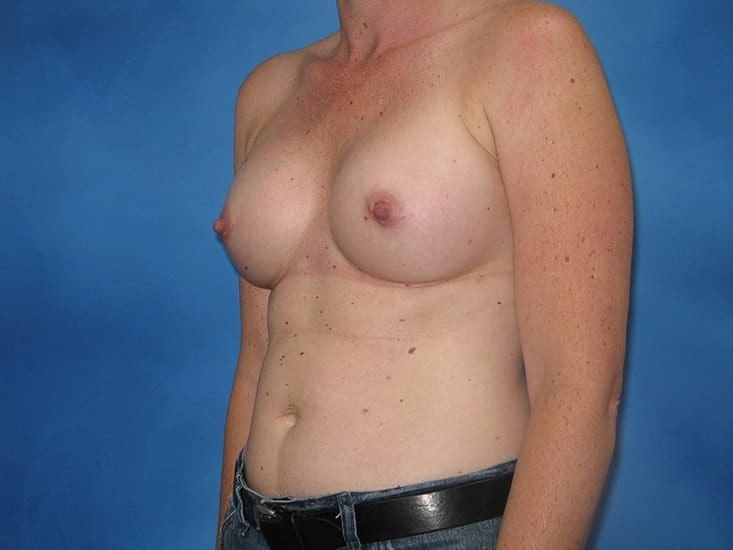 Breast Enlargement Munster Patient 3.1