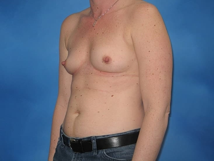 Breast Enlargement Munster Patient 3
