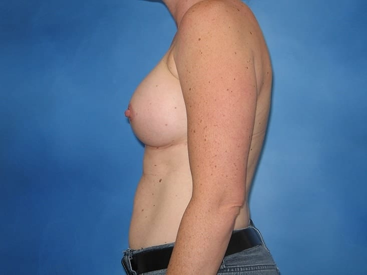 Breast Enlargement Munster Patient 4.1
