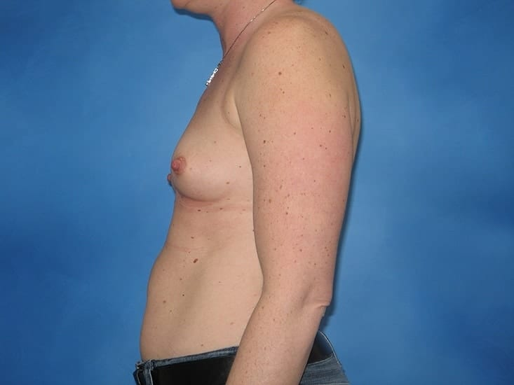 Breast Enlargement Munster Patient 4