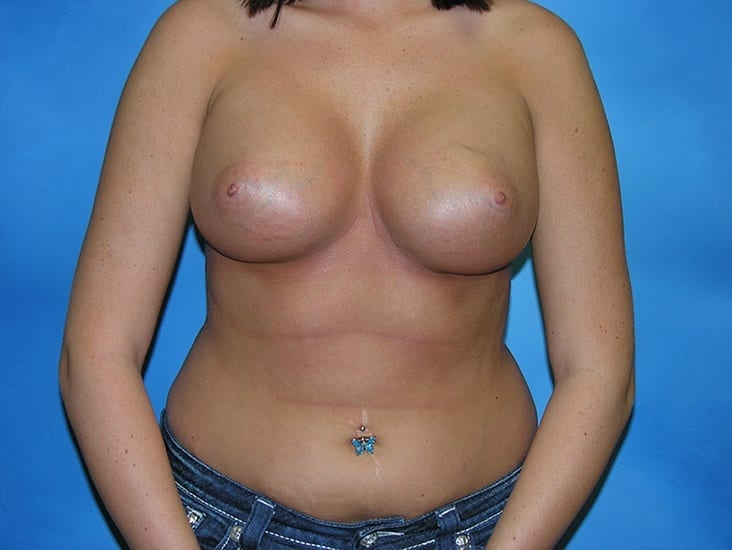 Breast Enlargement Munster Patient 5.1