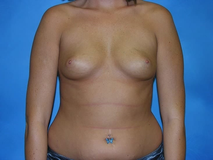 Breast Enlargement Munster Patient 5