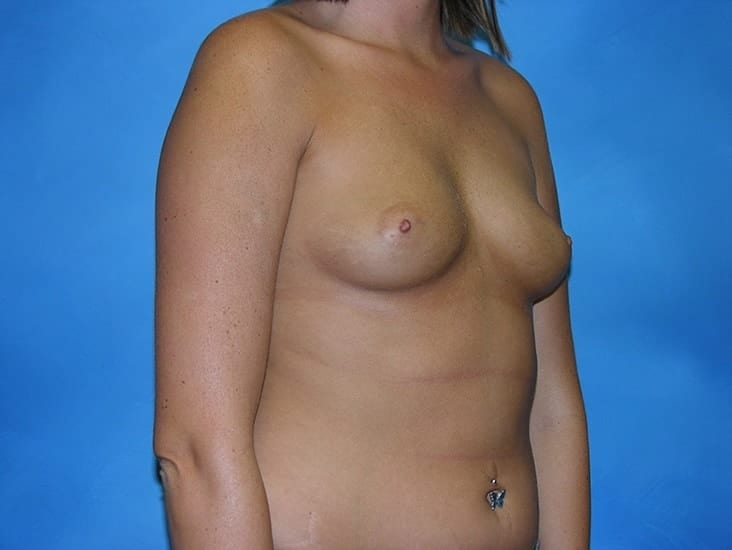Breast Enlargement Munster Patient 6