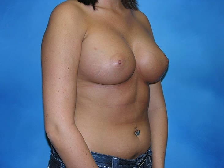 Breast Enlargement Munster Patient 6.1