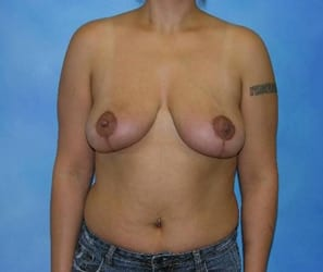 Breast Lift Munster Patient 1.1
