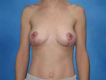 Breast Lift Munster Patient 2.1