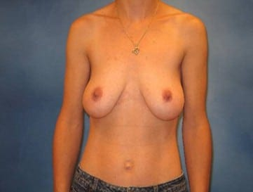 Breast Lift Munster Patient 2