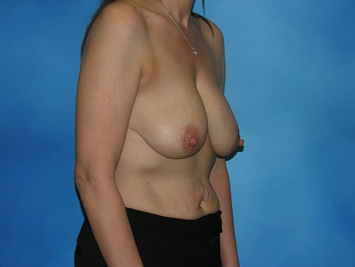 Breast Lift Munster Patient 3