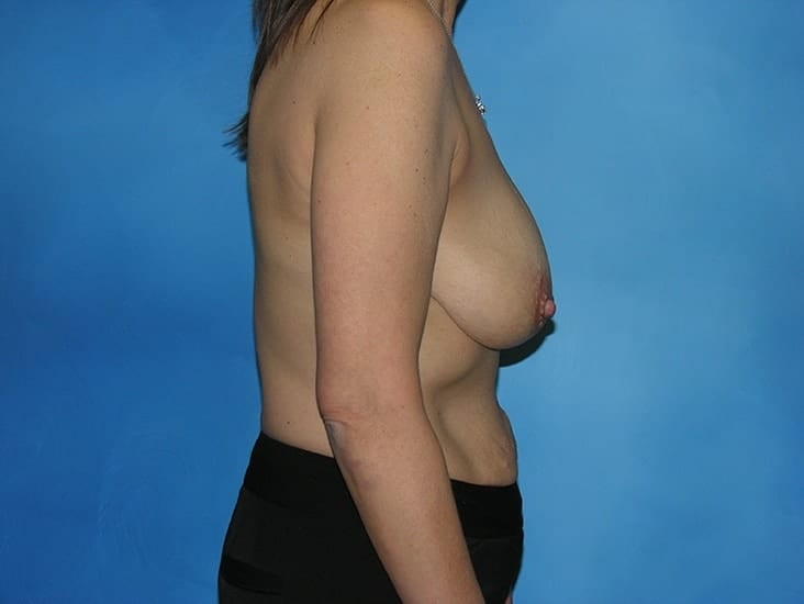Breast Lift Munster Patient 4