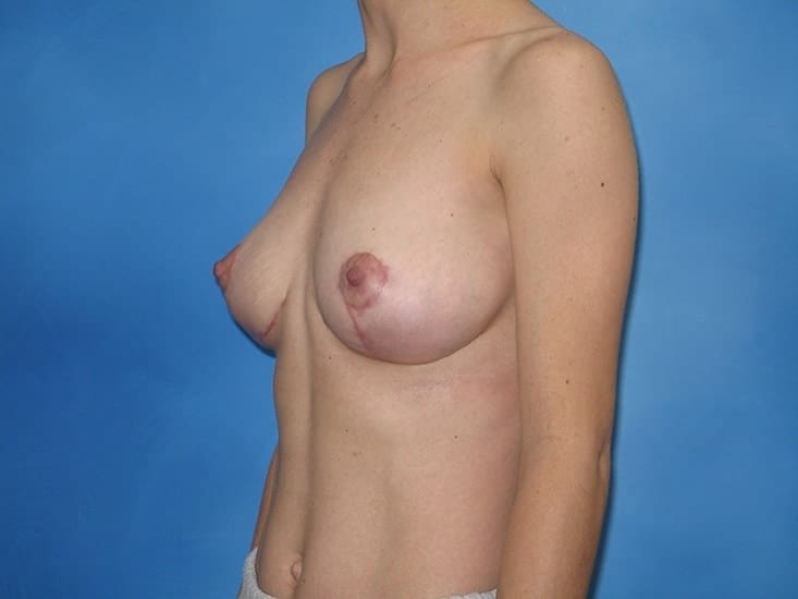 Breast Lift Munster Patient 6.1