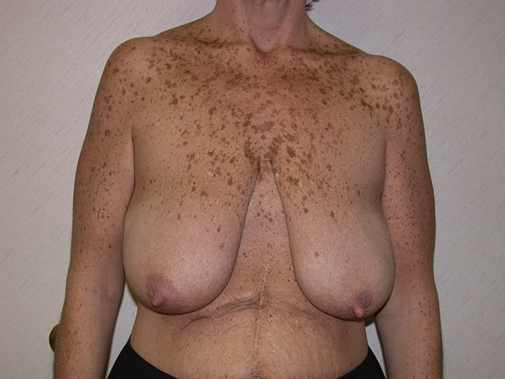 Breast Lift Munster Patient 7