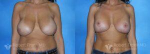 Breast lift Hobart Patient 6-1