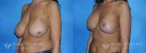 Breast lift Hobart Patient 6-2