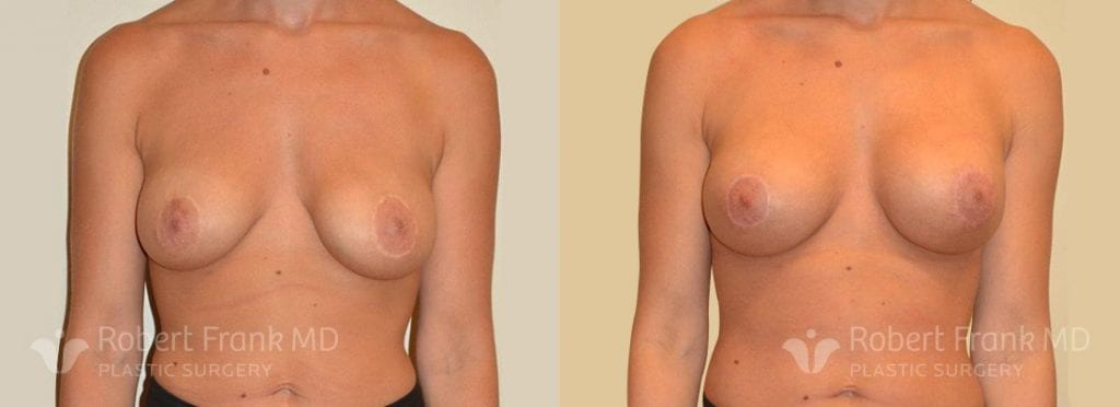 Breast lift Hobart Patient 7-1