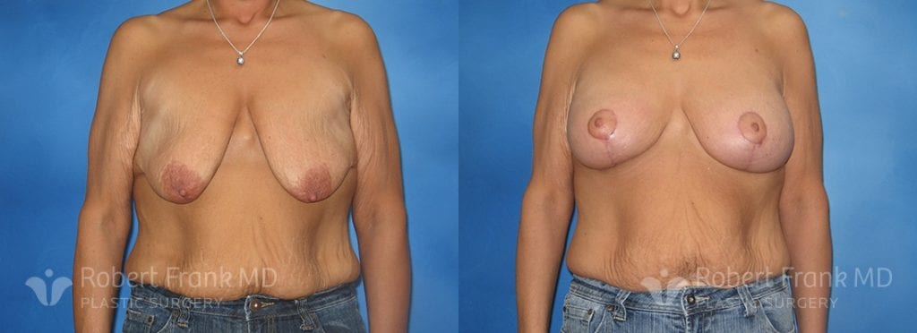 Breast lift Lake county Patient 4-1