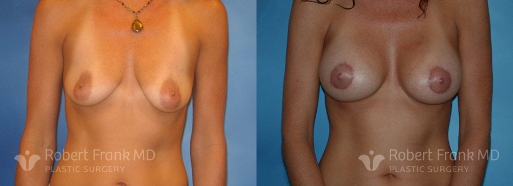 Breast lift Lake county Patient 5-1