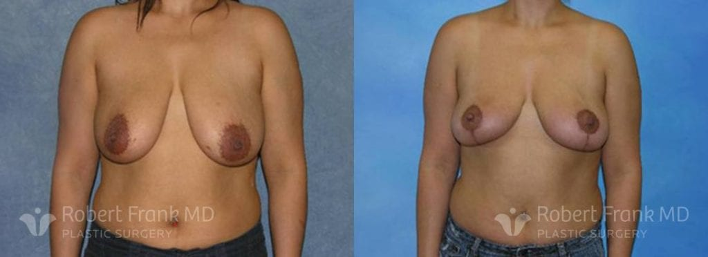 Breast lift Munster Patient 8-1