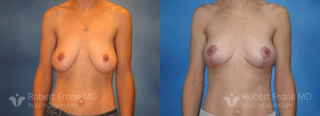 Breast lift Munster Patient 9-1