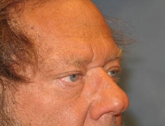Eyelid Surgery Hobart Patient 1