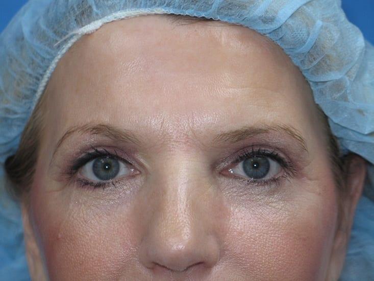 Eyelid Surgery Hobart Patient 2.1