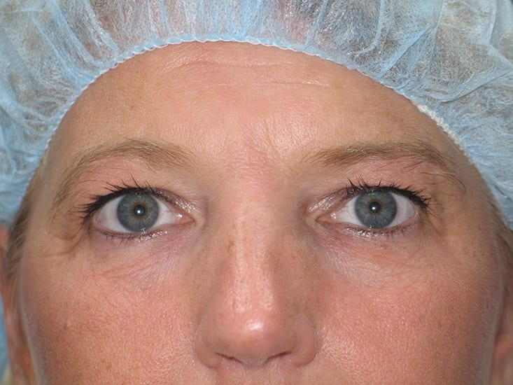 Eyelid Surgery Hobart Patient 2