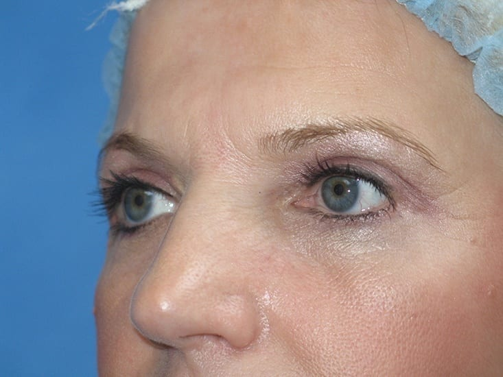 Eyelid Surgery Lake County Patient 1.1