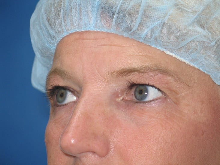 Eyelid Surgery Lake County Patient 1