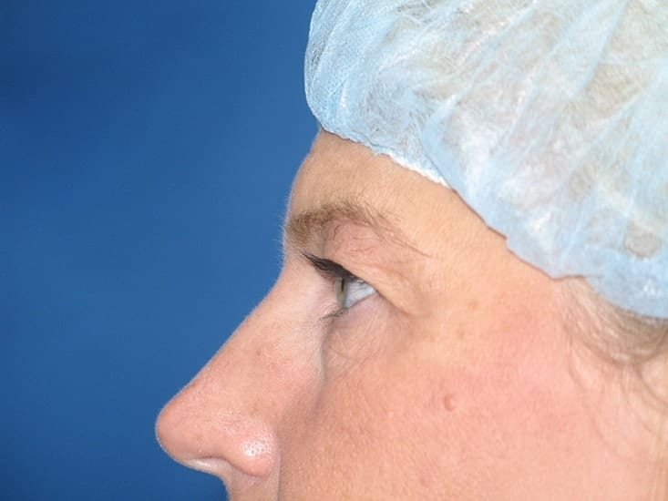 Eyelid Surgery Lake County Patient 2