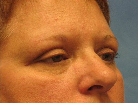 Eyelid Surgery Munster Patient 1.1