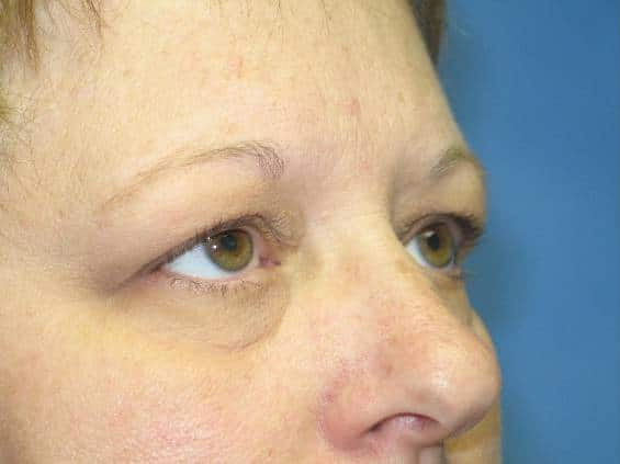 Eyelid Surgery Munster Patient 1
