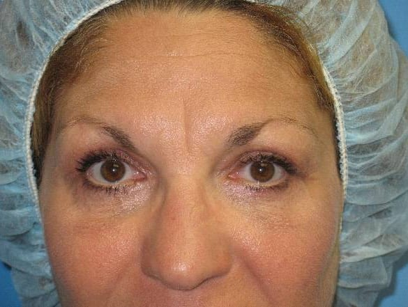 Eyelid Surgery Munster Patient 2.1