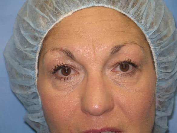 Eyelid Surgery Munster Patient 2