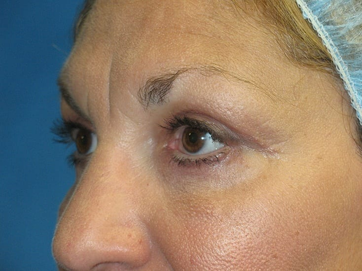 Eyelid Surgery Munster Patient 3.1