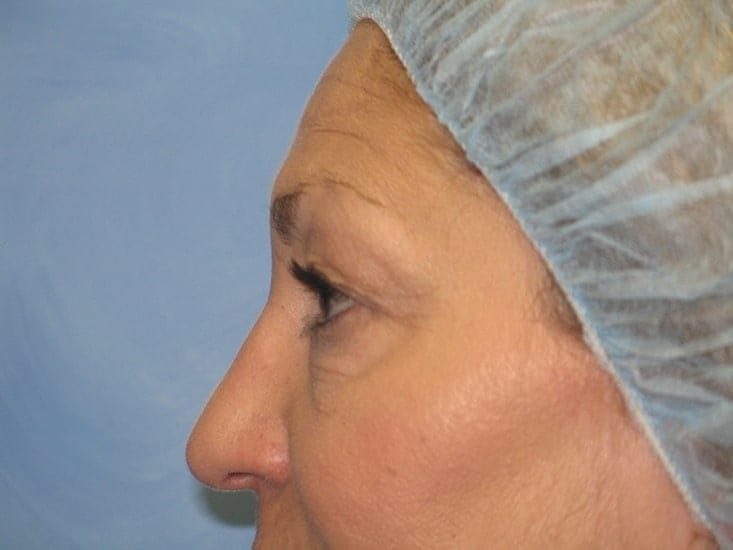 Eyelid Surgery Munster Patient 3
